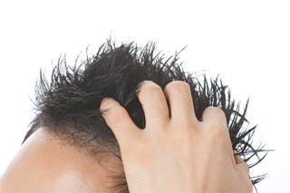 AGA(男性の薄毛)治療について
