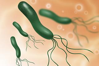 ピロリ菌の検査について